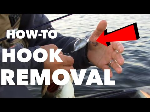 Great Hook Removal Technique – ANGLER BURIES HOOK IN HAND