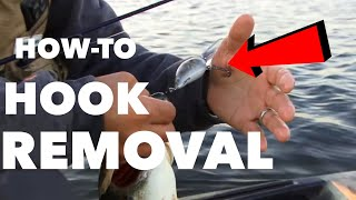Great Hook Removal Technique - ANGLER BURIES HOOK IN HAND