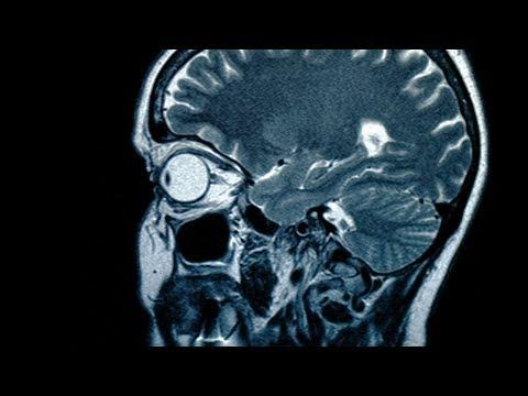 Bandwurm frisst sich durch Gehirn: Ärzte waren ratlos!