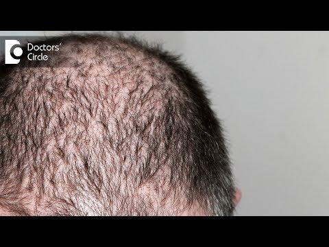 minoxidil-for-hair-loss---dr.-k-prapanna-arya
