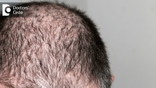 Minoxidil for hair loss - Dr. K Prapanna Arya