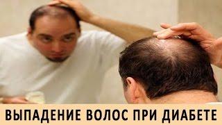 Смотреть видео  если волосы выпадают из за нервного стресса