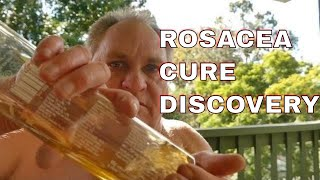 ROSACEA CURE DOCTORS WONT TELL YOU