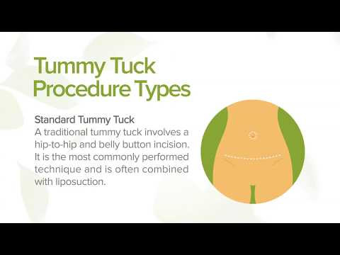 tummy-tuck:-benefits,-types-and-recovery-|-marin-aesthetics