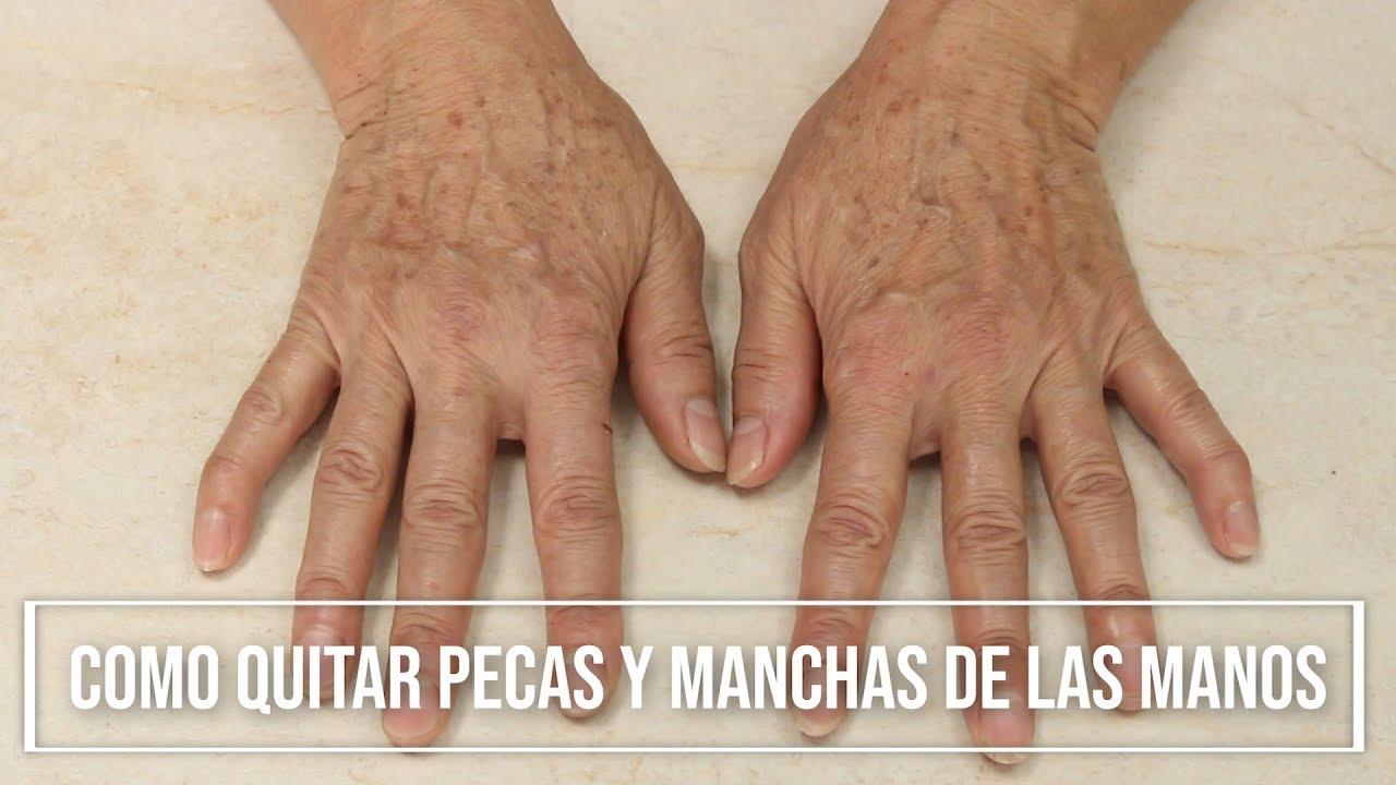 Como quitar las manchas de las manos y brazos