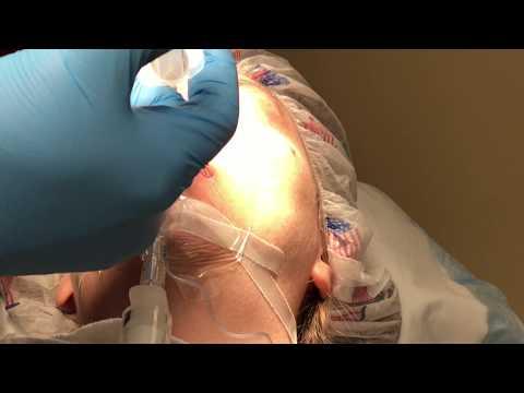 How do they do a Nose Job (Rhinoplasty)?