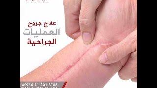 علاج جروح العمليات الجراحية