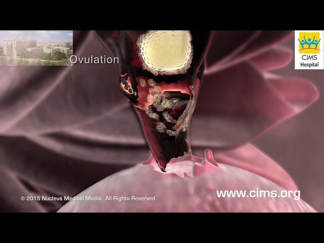 Polycystic Ovary Syndrome PCOS (Hindi) - CIMS Hospital