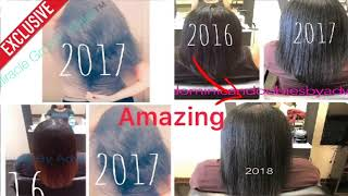 BEFORE & AFTER PICTURES Of MIRACLE GROWTH WATER ™️ CLIENTS