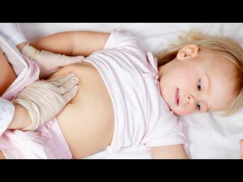 Сальмонеллез симптомы у детей