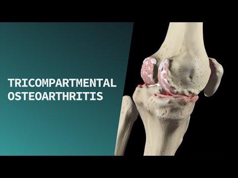 Tricompartmental Osteoarthritis