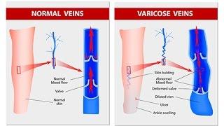 Quels sont les symptômes des varices ?