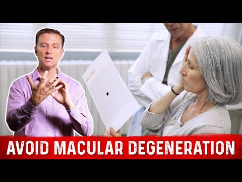 how-to-prevent-macular-degeneration
