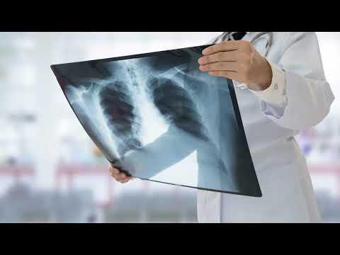 Как определить туберкулез на ранней стадии? Диагностика туберкулеза у взрослых на ранней стадии!