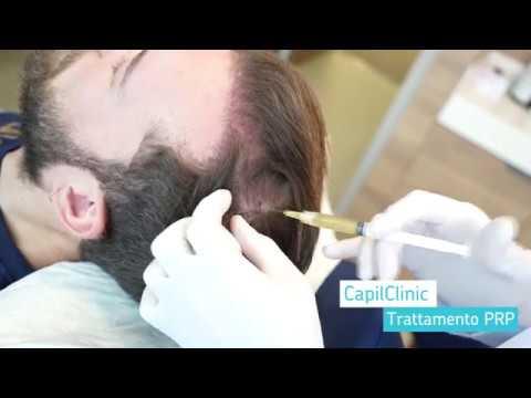 Trapianto di capelli in Turchia: Trattamento PRP con Capilclinic