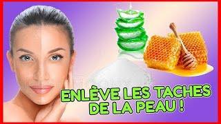 Comment éliminer les taches sur le visage et les mains (remède à la maison)