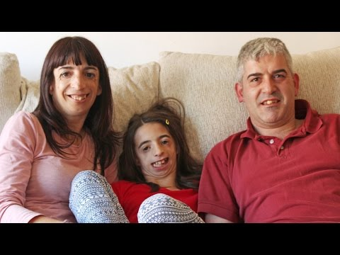 Treacher Collins: Mother And Daughter Suffer From Rare Condition - Body Bizarre Episode 4 Teaser