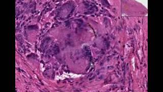 Histopathology Soft tissue --Foreign body reaction
