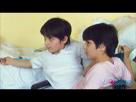 История сиамских близнецов