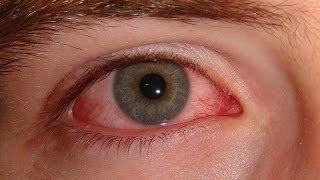 سبب الرعشة أو النبض في العين