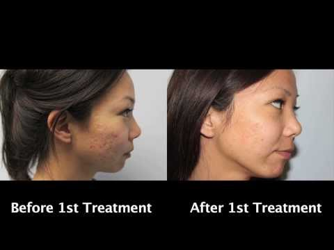 Asian Laser Acne Scar Removal with Before and After Pictures