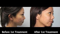 hqdefault - Acne Scars Pictures Treatment