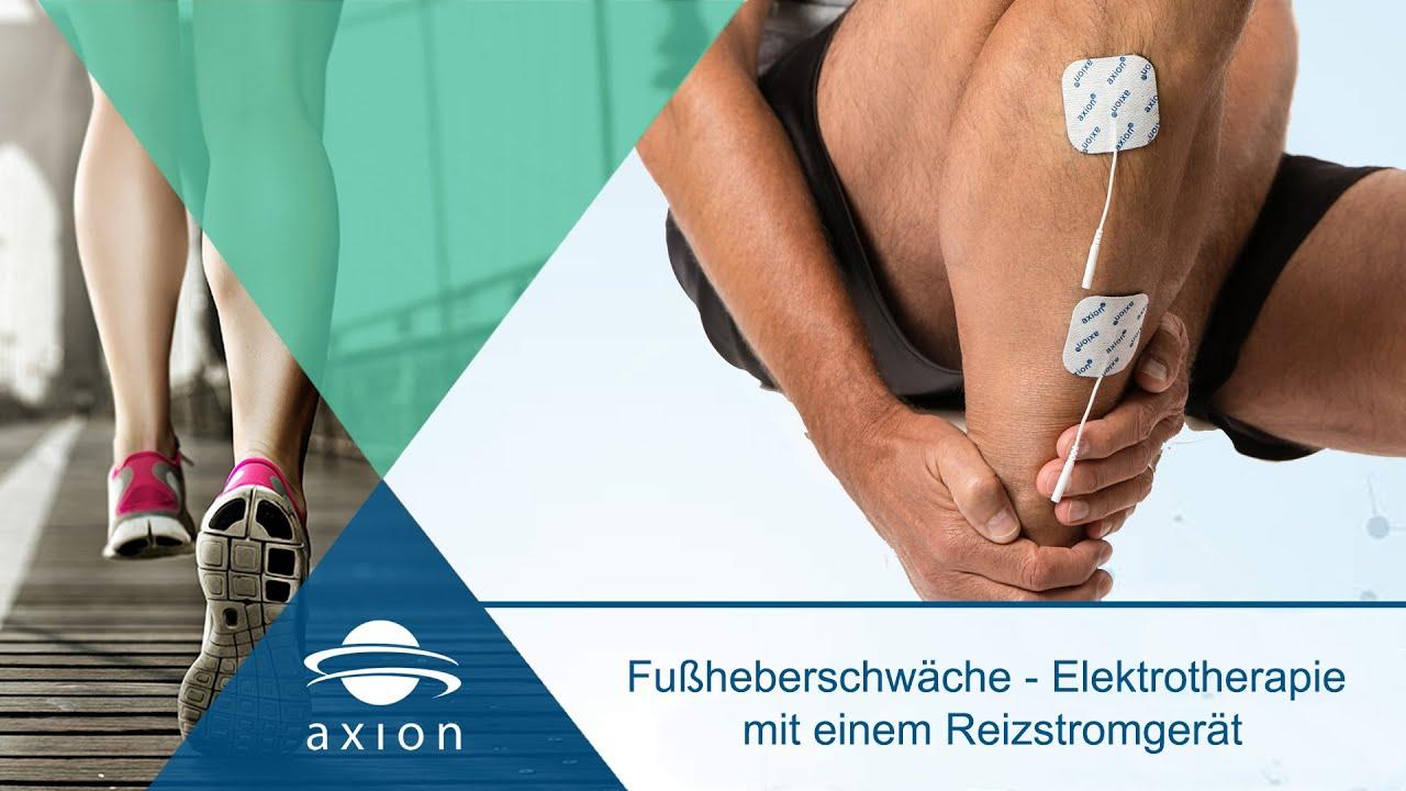 Etonnant Fußheberschwäche   Elektrotherapie Mit Einem Reizstromgerät