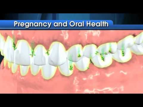 Dental Care During Your Pregnancy