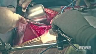 Right Donor Hepatectomy liver transplantation ERBEJET