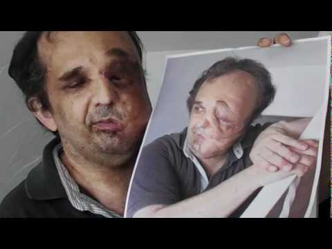 Facial tumor jose images 523