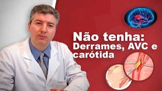 Derrames e a artéria carótida: Dr Alexandre Amato