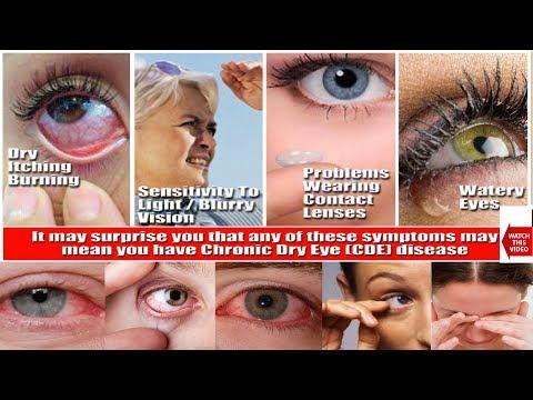 DRY EYE SYNDROME | हिंदी में | HINDI | Education & Information |Causes , Symptoms , Treatment.