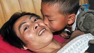 The 6 Years Old Kids Takes Care Of Paralyzed Father After Their Moms Abandons Them