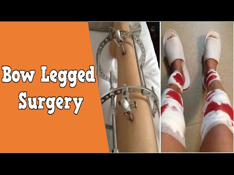 surgery legs bow Adult for