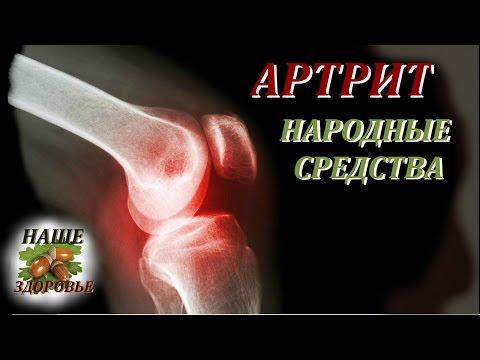 Симптомы и методы лечение коленного артрита, народные методы