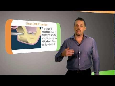 What is Bone Grafting?   CAID Australia