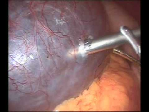 laparoscopic unroofing of large simple liver cyst. - youtube, Human Body