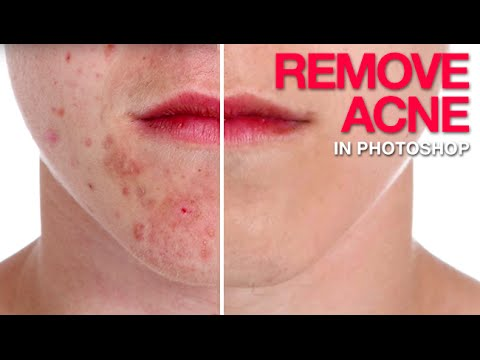How to Remove Acne in Photoshop