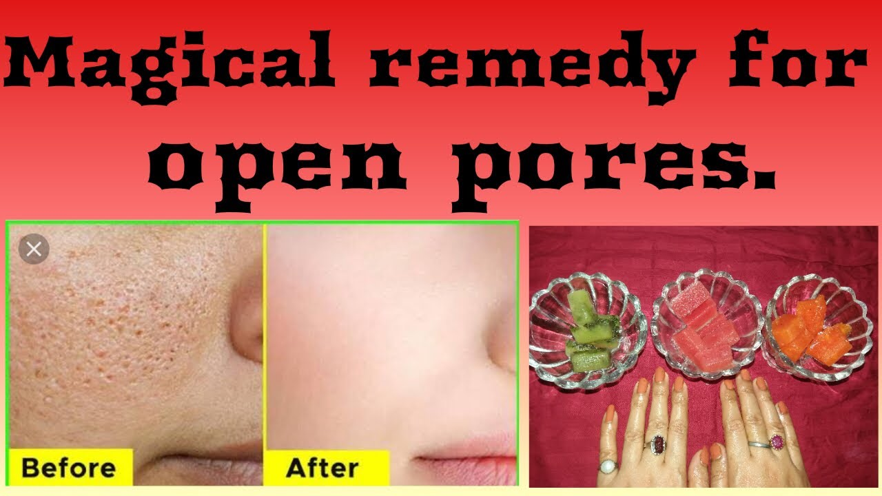 Shreya herbal tips| Remedy for open pores. #Herbalmedicine