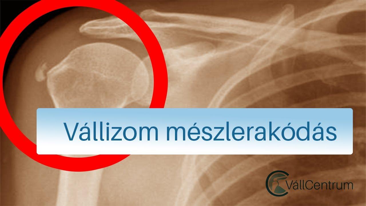 fájdalomcsillapító a vállízület artrózisában)