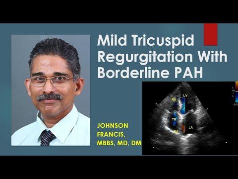 Mild tricuspid regurgitation with borderline pulmonary ...