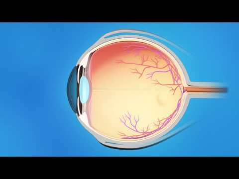 All About Glaucoma!