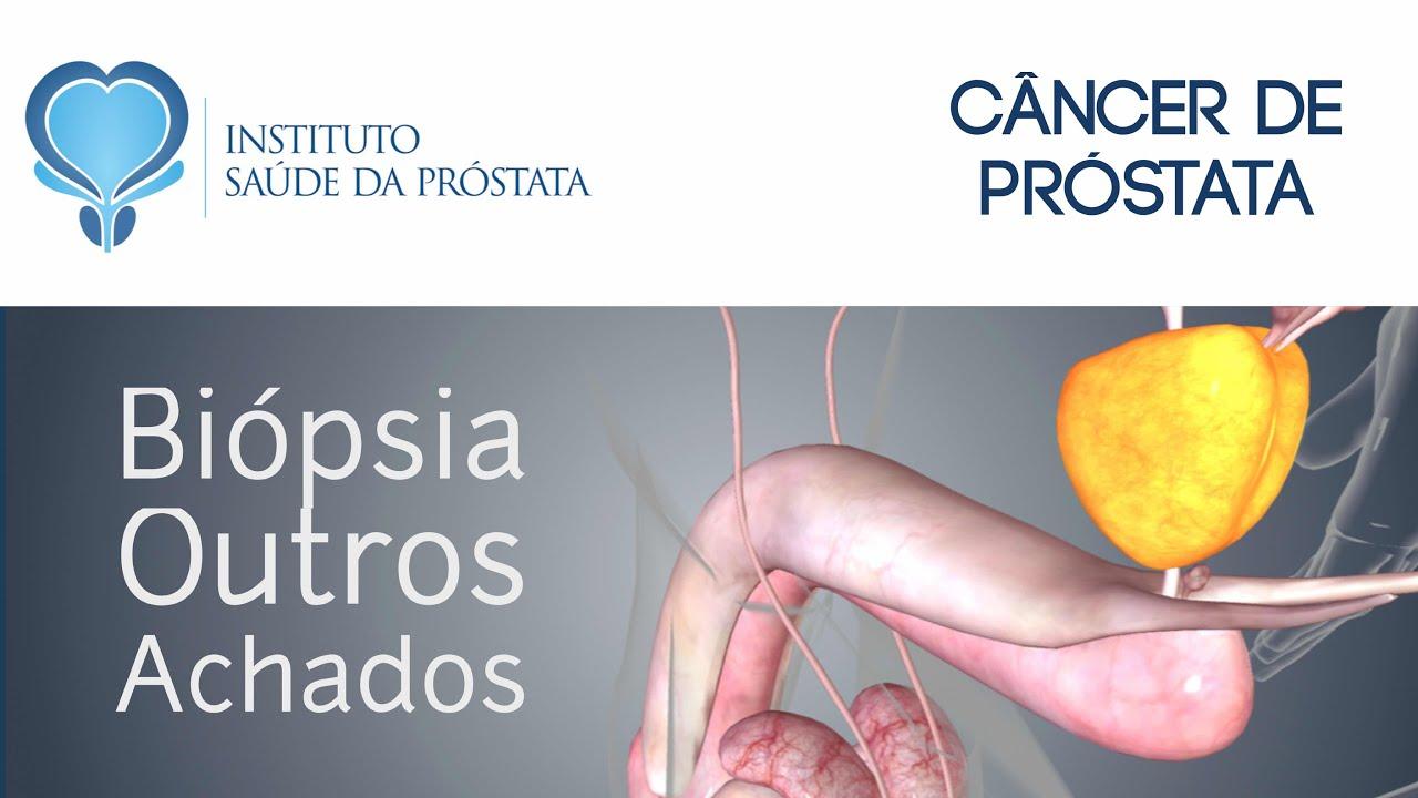 ajo para el cancer de prostata