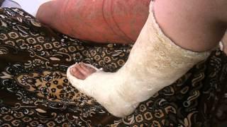 Гипс на ноге после операции ладышки(, 2015-07-28T16:25:32.000Z)