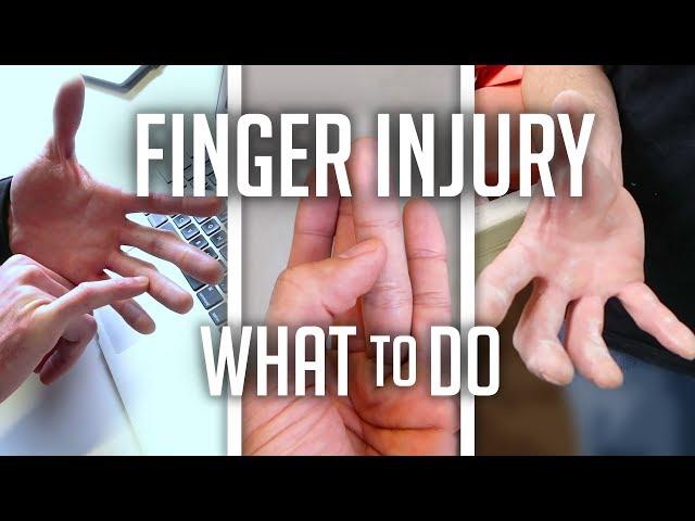 Climbing Finger Injury / What to do! VLOG!