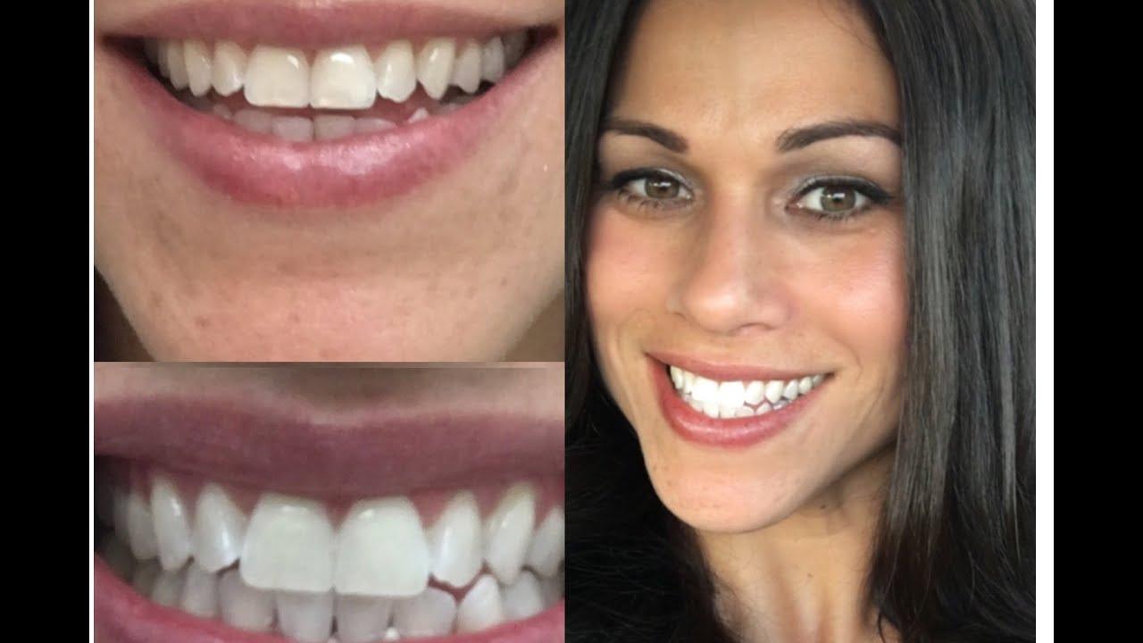 I Got My Teeth Zoom Whitened Youtube