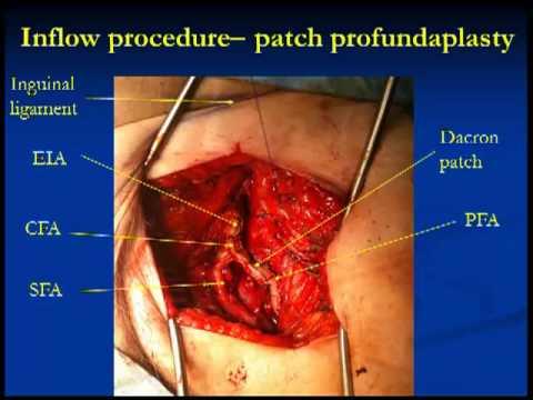 superficial femoral artery occlusion - youtube, Cephalic Vein