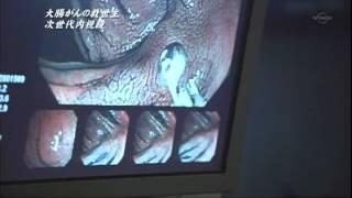 大腸内視鏡検査‐藤井隆広クリニック‐.mpg