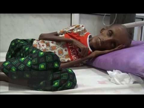 Starving Teen in Yemen Shows the Horrors of War