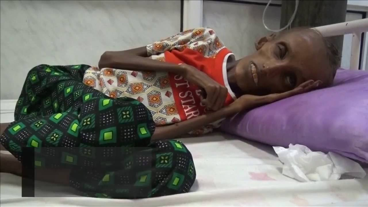 Starving Teen In Yemen Shows The Horrors Of War Youtube